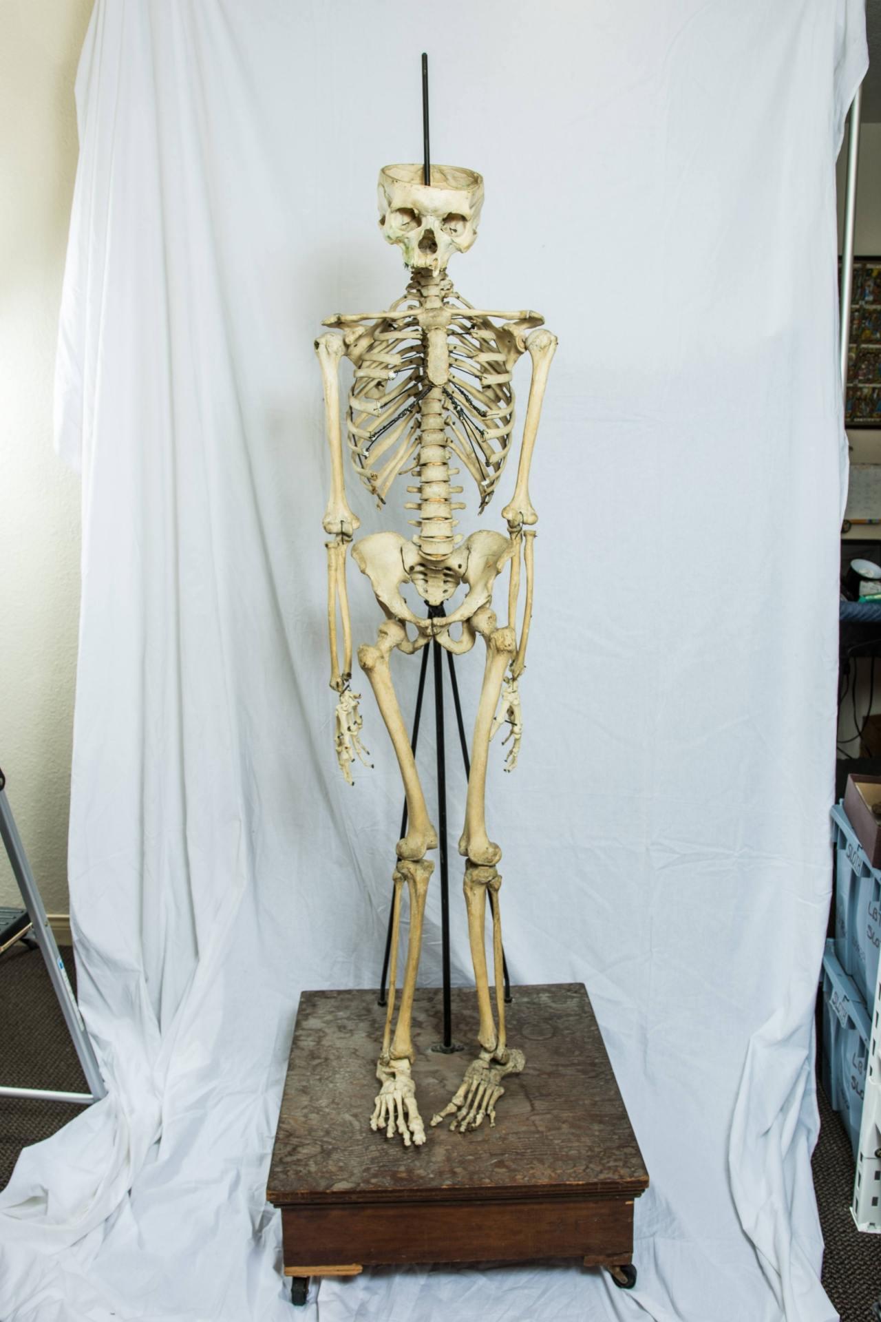 Human Skeletal Specimen